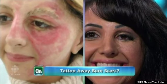 Photo of Woman Tattoos Her Own Face To Cover Scars, Starts Business To Help Other Burn Victims