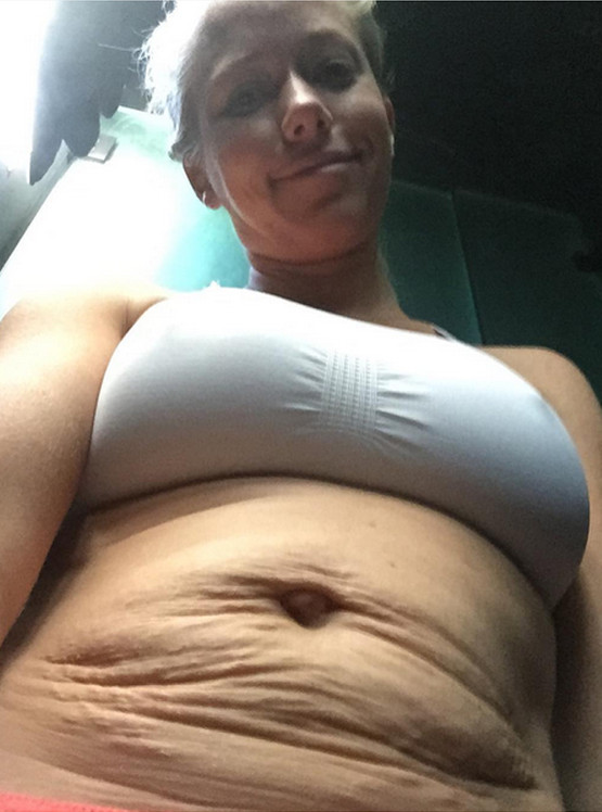 Photo of Former Playboy shows off stretch marks